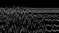 museo-marco-Mauricio Limon-Regiones electroencefalograficas
